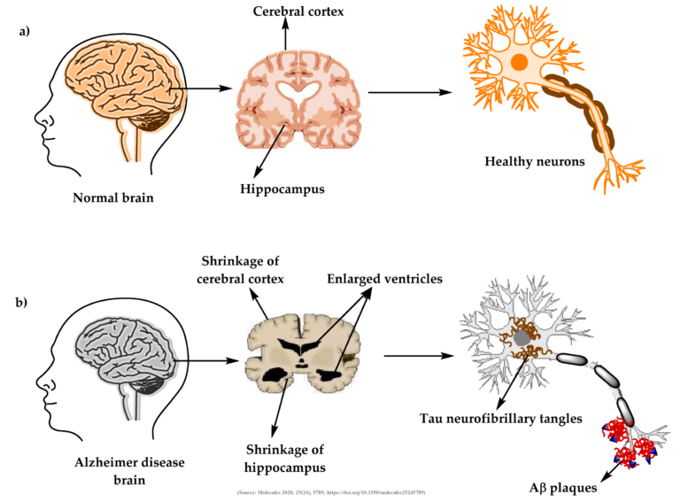 Difference between normal person brain Alzheimer's Diseased brain
